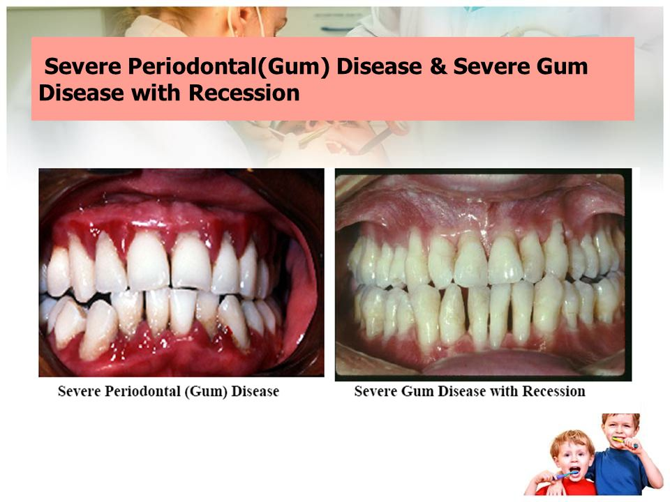 Severe Periodontal(Gum) Disease & Severe Gum Disease with Recession