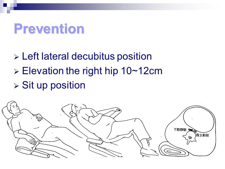 Prevention Left lateral decubitus position