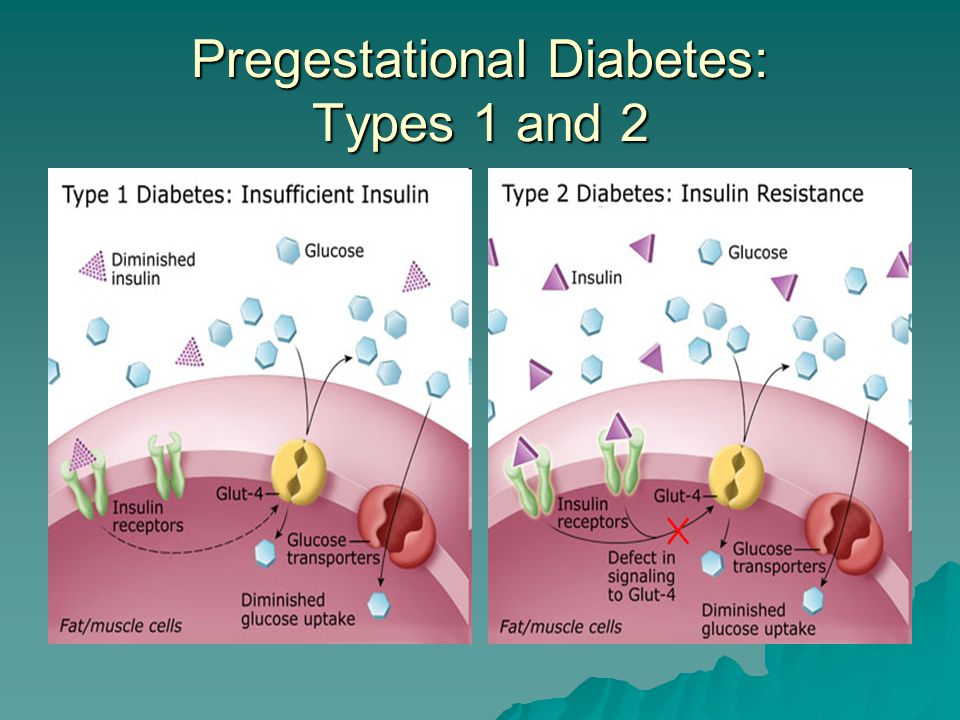Pregestational Diabetes: Types 1 and 2