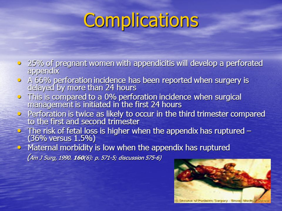 Complications 25% of pregnant women with appendicitis will develop a perforated appendix.