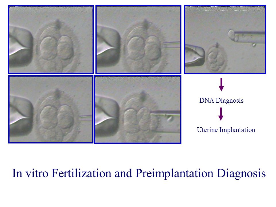 In vitro Fertilization and Preimplantation Diagnosis