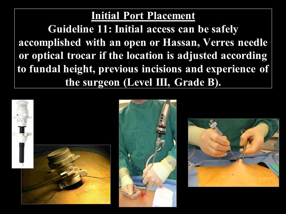 Initial Port Placement Guideline 11: Initial access can be safely accomplished with an open or Hassan, Verres needle or optical trocar if the location is adjusted according to fundal height, previous incisions and experience of the surgeon (Level III, Grade B).