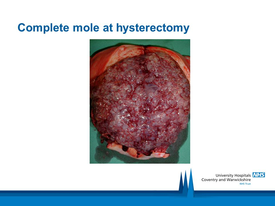 Complete mole at hysterectomy