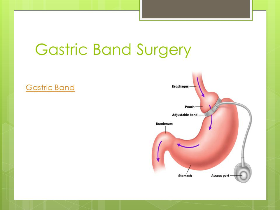 Gastric Band Surgery Gastric Band