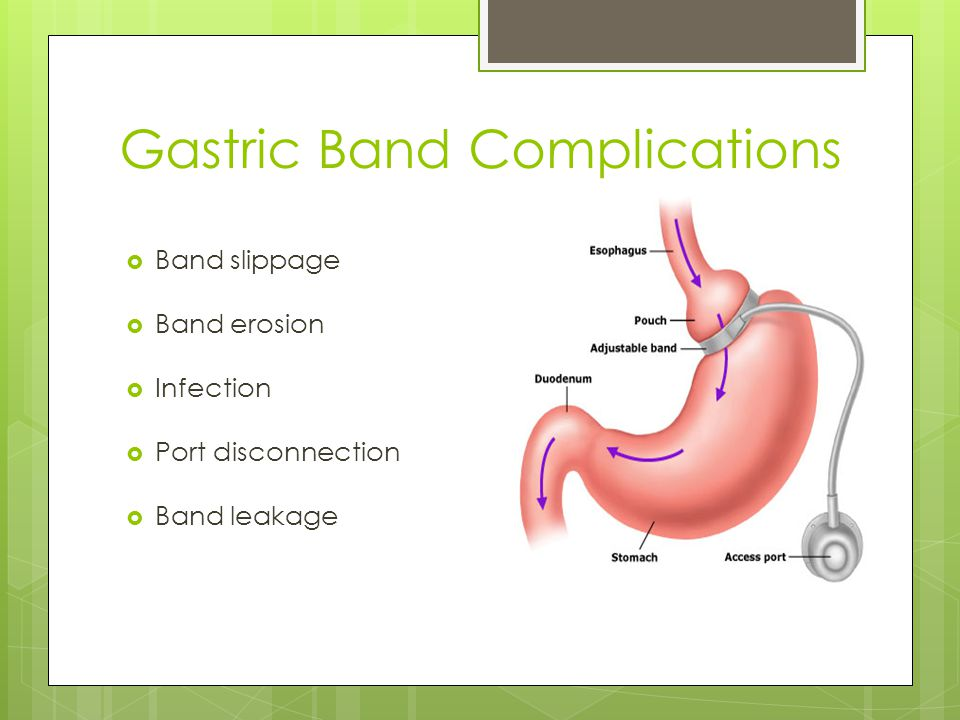 Gastric Band Complications