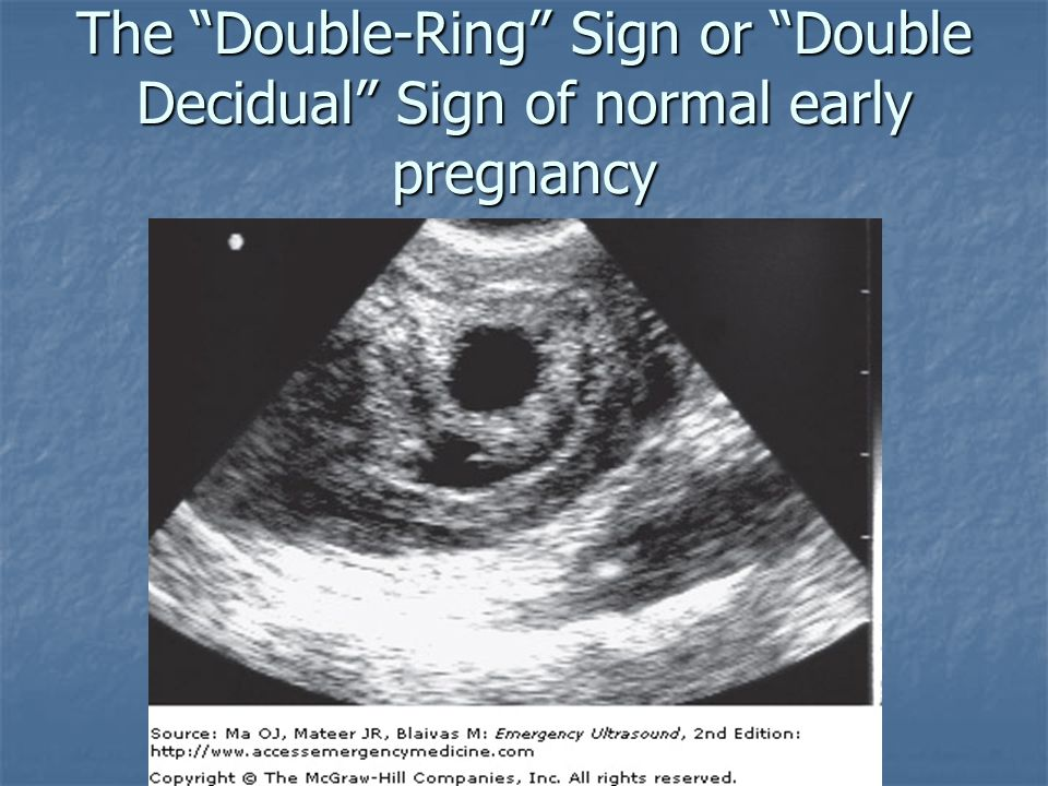 The Double-Ring Sign or Double Decidual Sign of normal early pregnancy