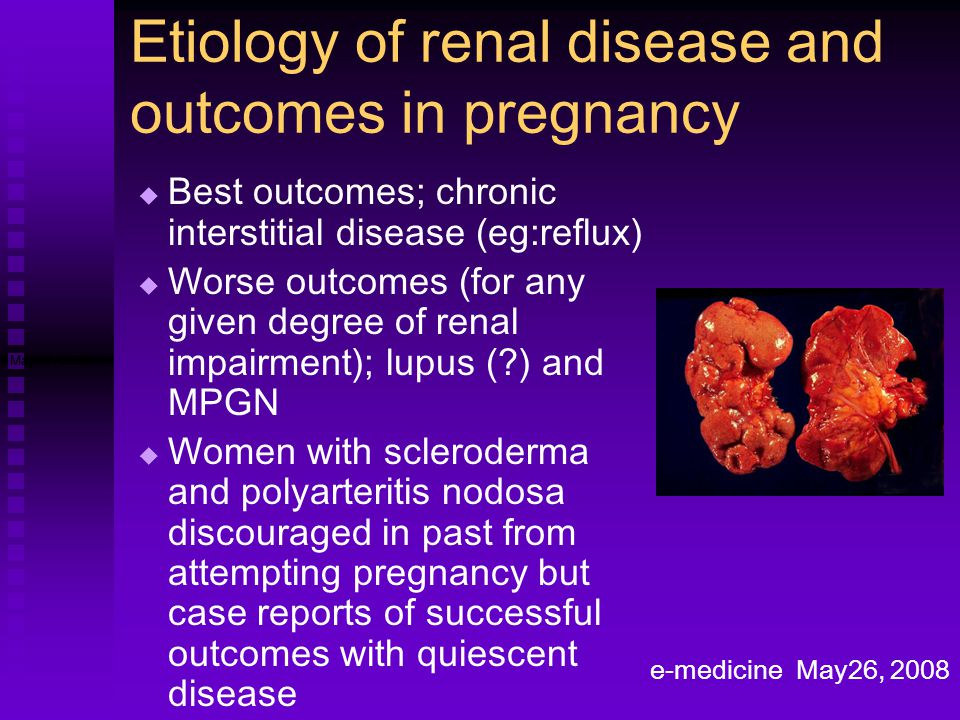 Etiology of renal disease and outcomes in pregnancy