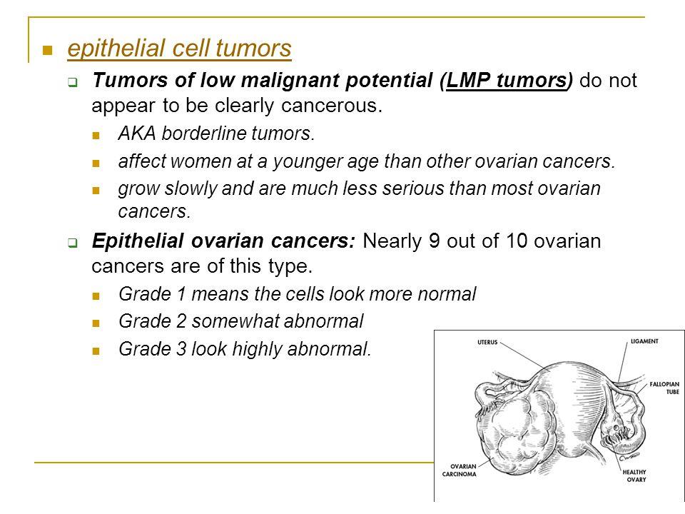 epithelial cell tumors