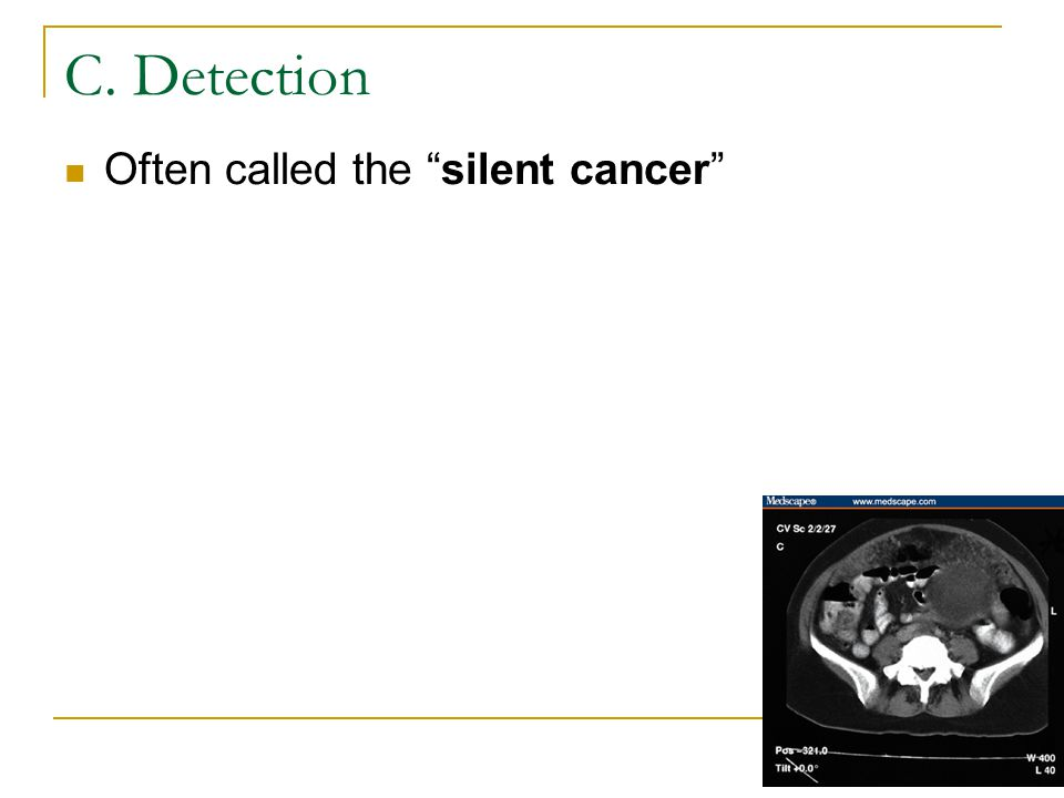 C. Detection Often called the silent cancer