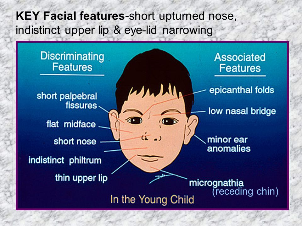 KEY Facial features-short upturned nose, indistinct upper lip & eye-lid narrowing