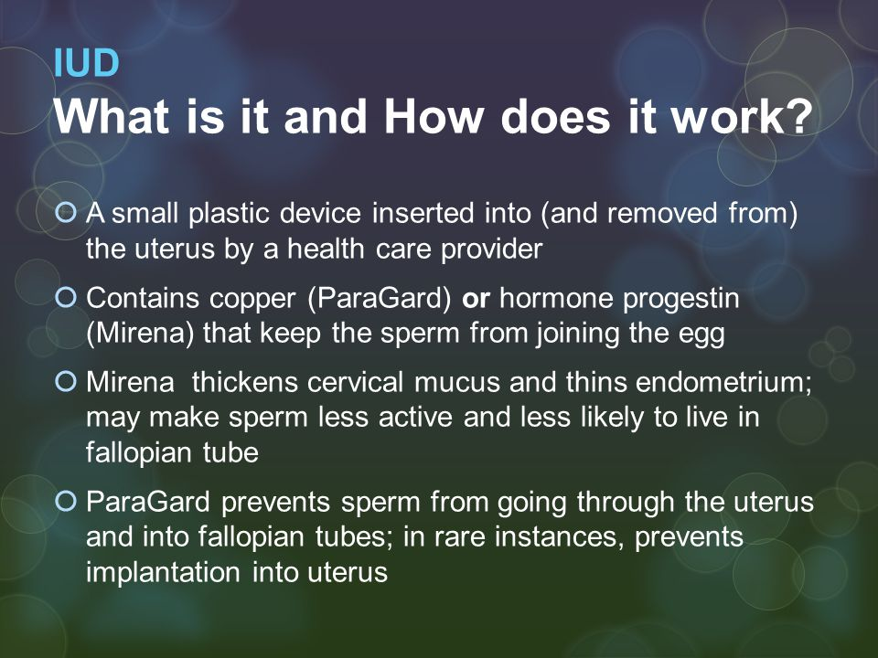 IUD What is it and How does it work