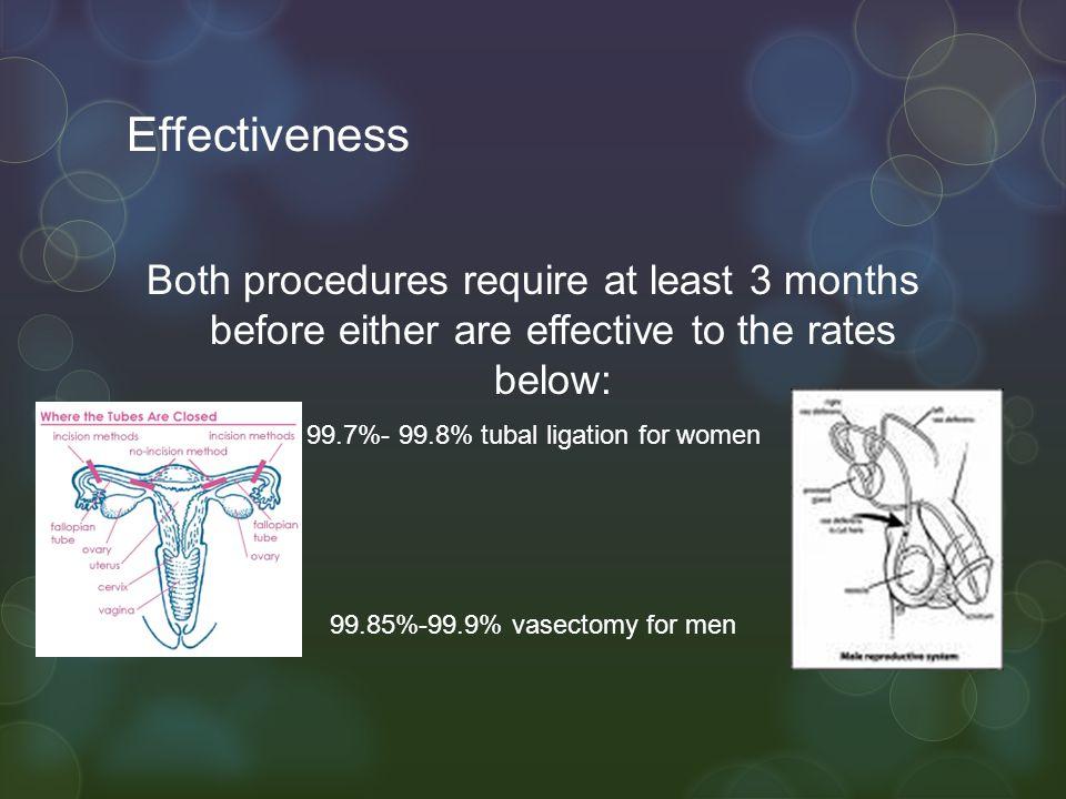 99.7%- 99.8% tubal ligation for women