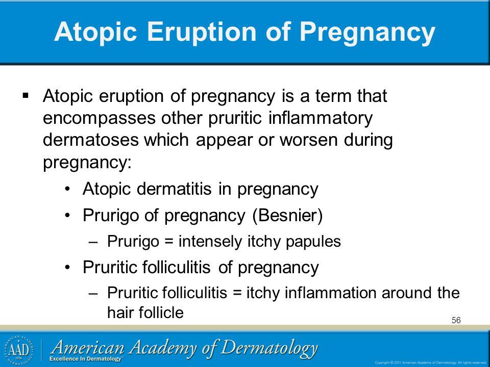 Atopic Eruption of Pregnancy