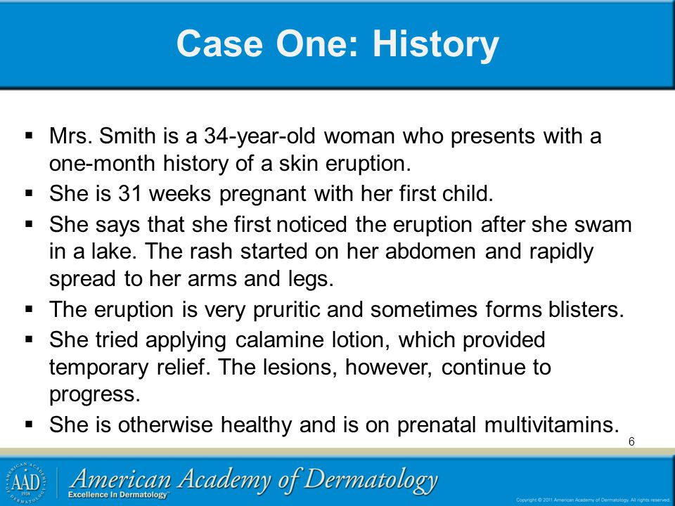 Case One: History Mrs. Smith is a 34-year-old woman who presents with a one-month history of a skin eruption.