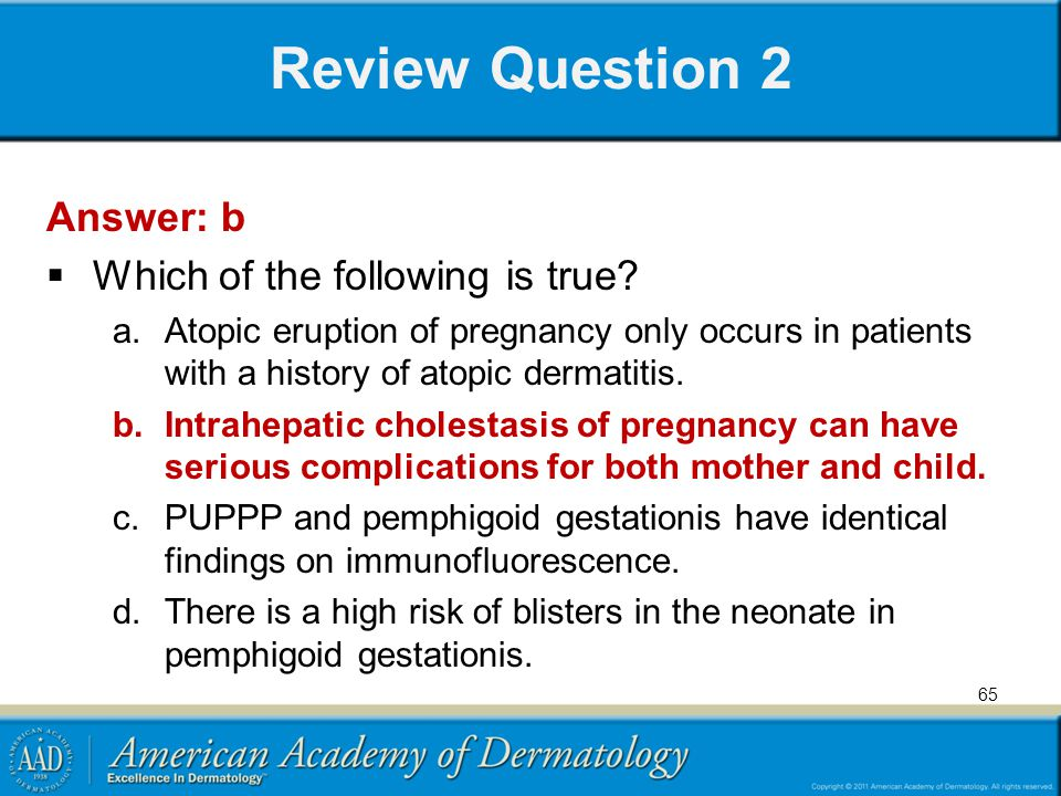 Review Question 2 Answer: b Which of the following is true