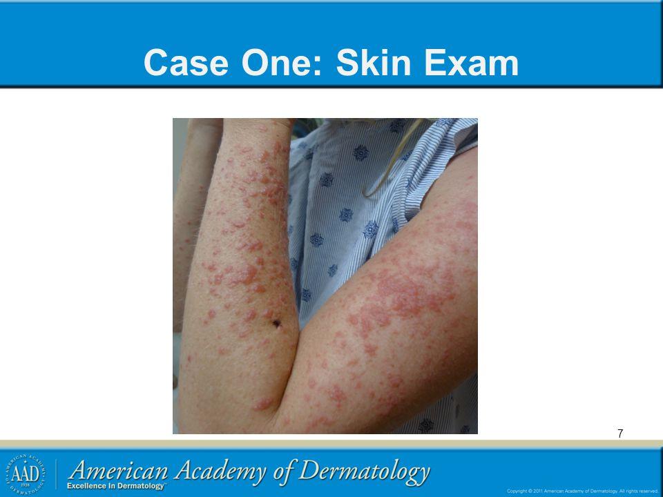 Case One: Skin Exam