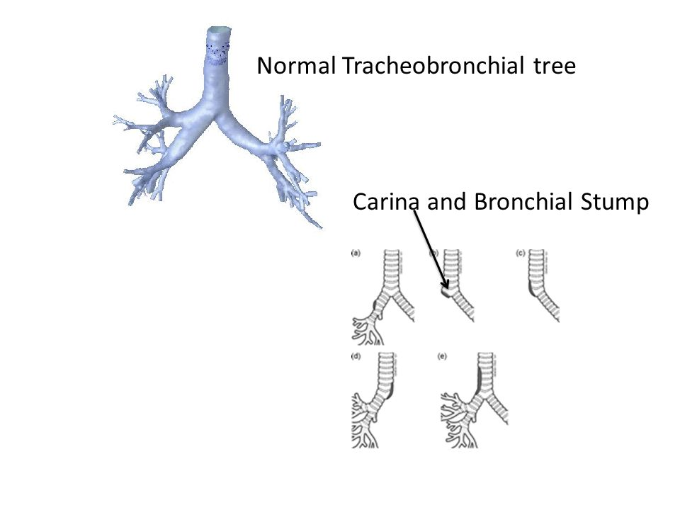 Normal Tracheobronchial tree