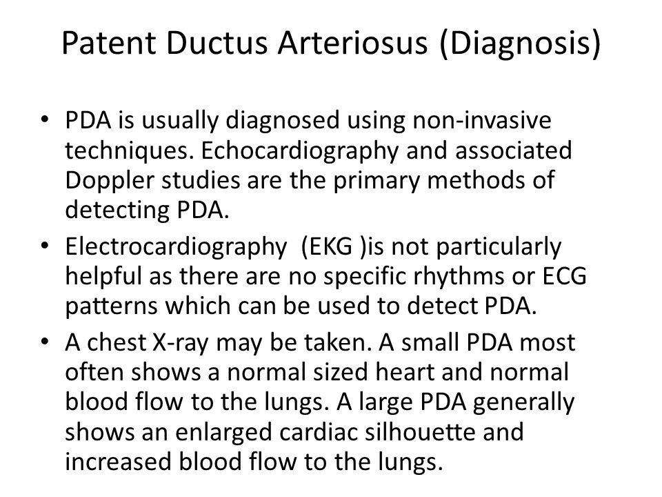 Patent Ductus Arteriosus (Diagnosis)