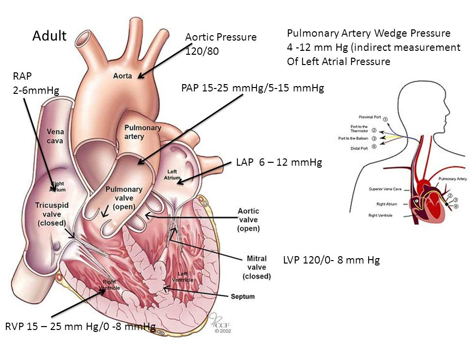 Adult Pulmonary Artery Wedge Pressure Aortic Pressure