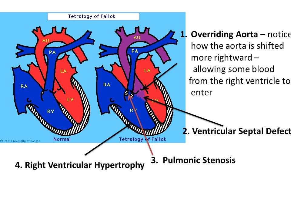 Overriding Aorta – notice how the aorta is shifted more rightward –