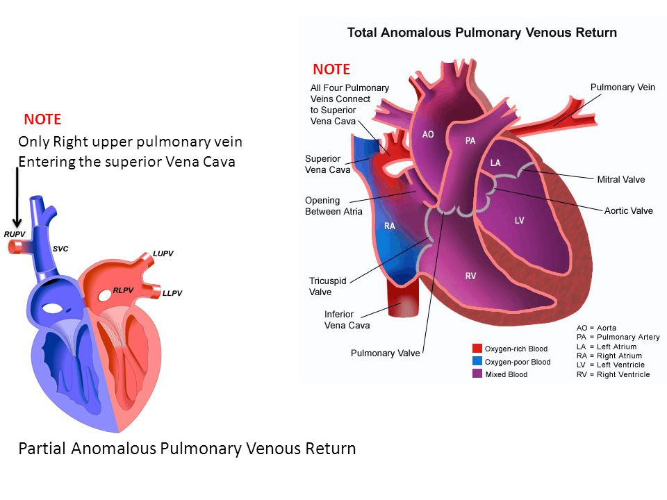 Partial Anomalous Pulmonary Venous Return