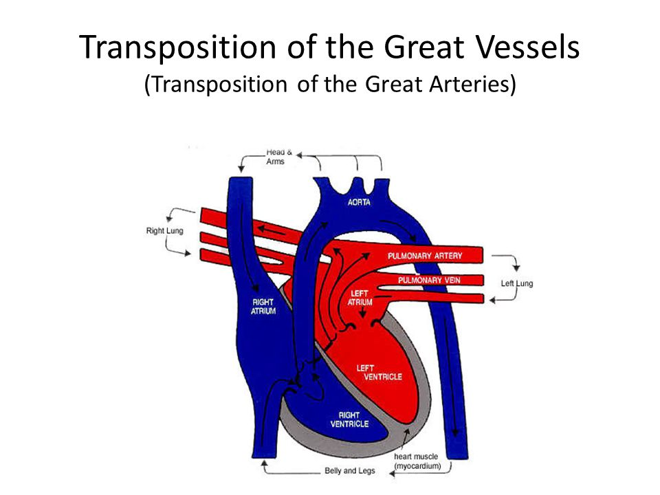 Transposition of the Great Vessels (Transposition of the Great Arteries)