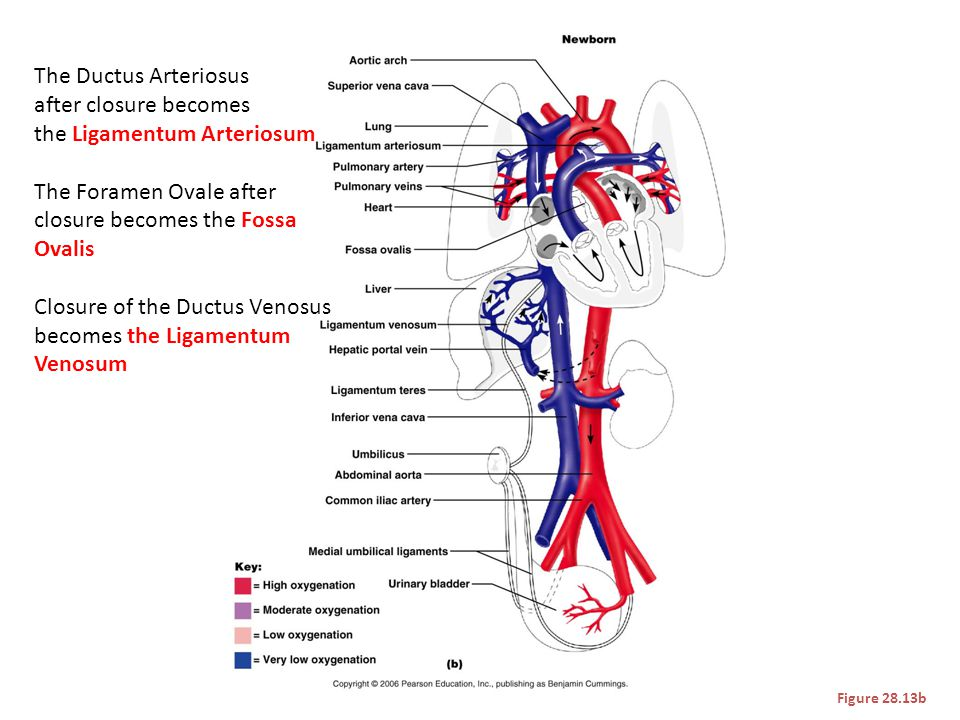 the Ligamentum Arteriosum The Foramen Ovale after