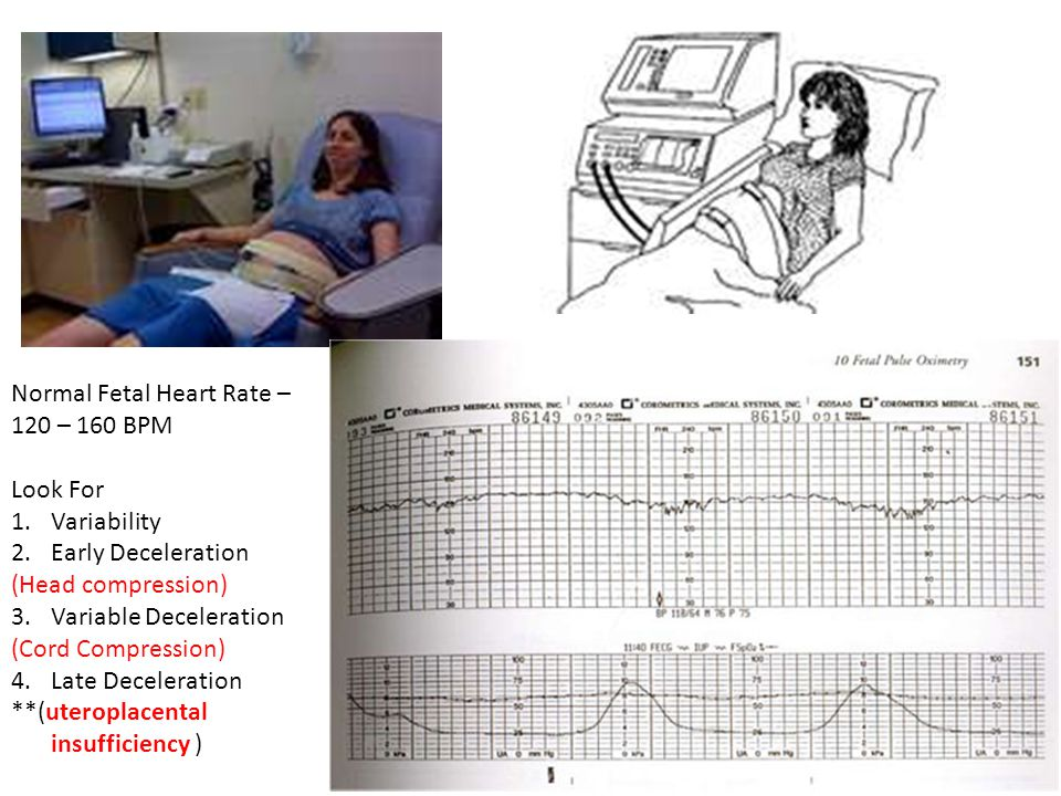 Normal Fetal Heart Rate –