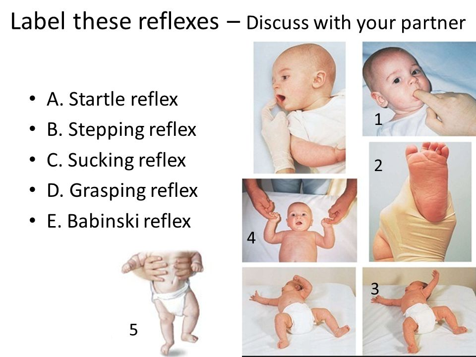 Label these reflexes – Discuss with your partner