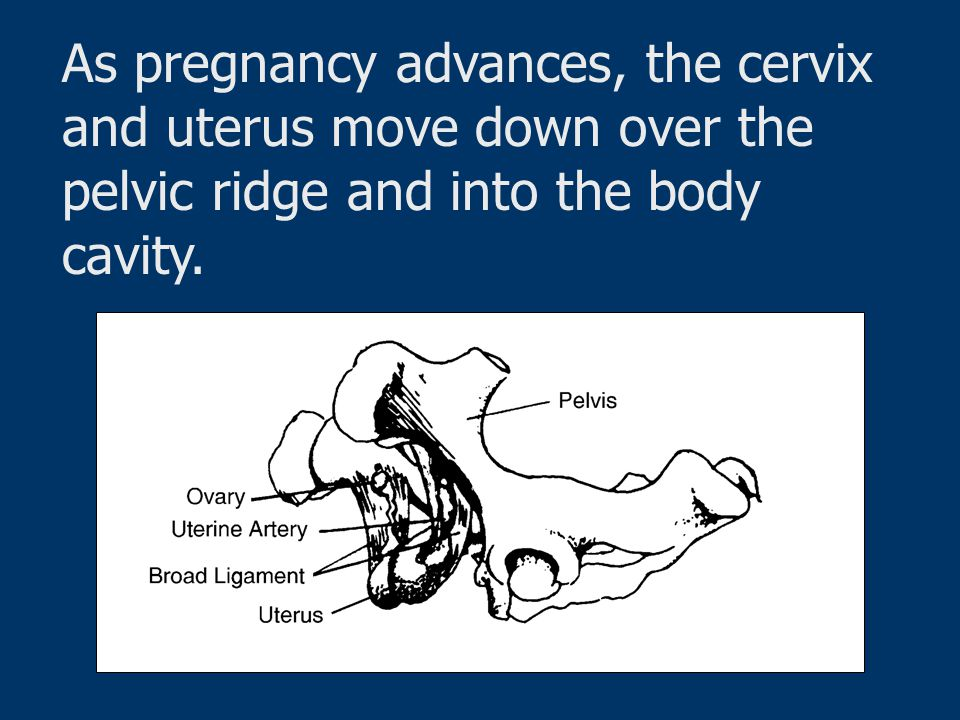 As pregnancy advances, the cervix and uterus move down over the pelvic ridge and into the body cavity.
