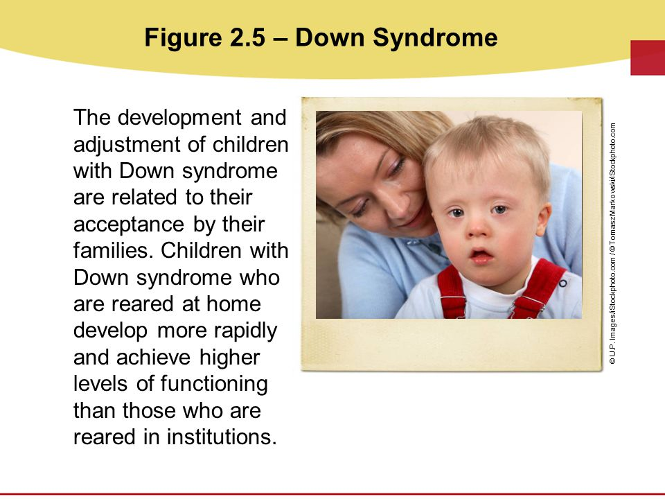 Figure 2.5 – Down Syndrome