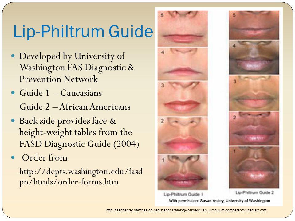 Lip-Philtrum Guide Developed by University of Washington FAS Diagnostic & Prevention Network. Guide 1 – Caucasians.