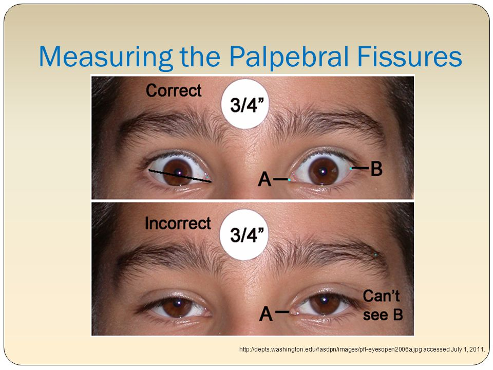 Measuring the Palpebral Fissures
