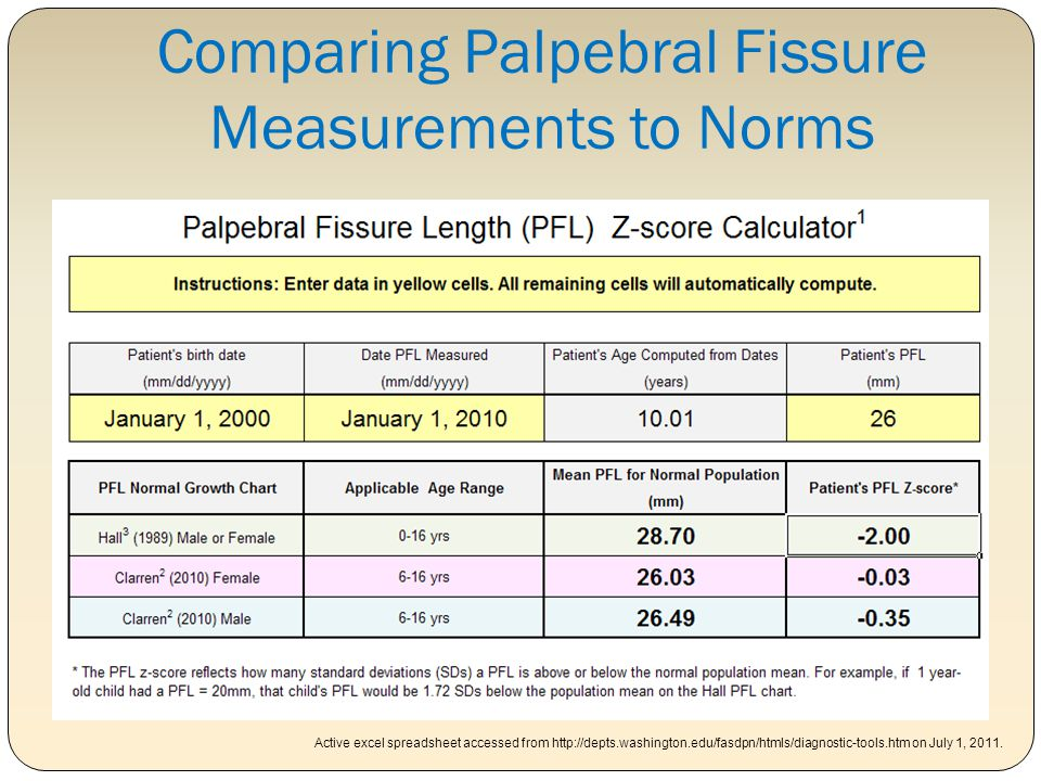 Comparing Palpebral Fissure Measurements to Norms