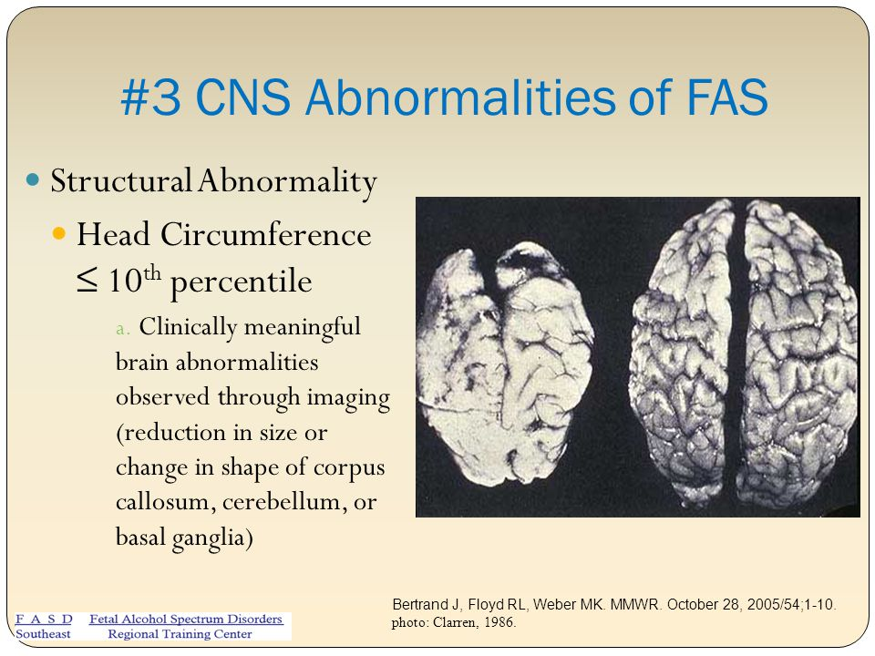 #3 CNS Abnormalities of FAS
