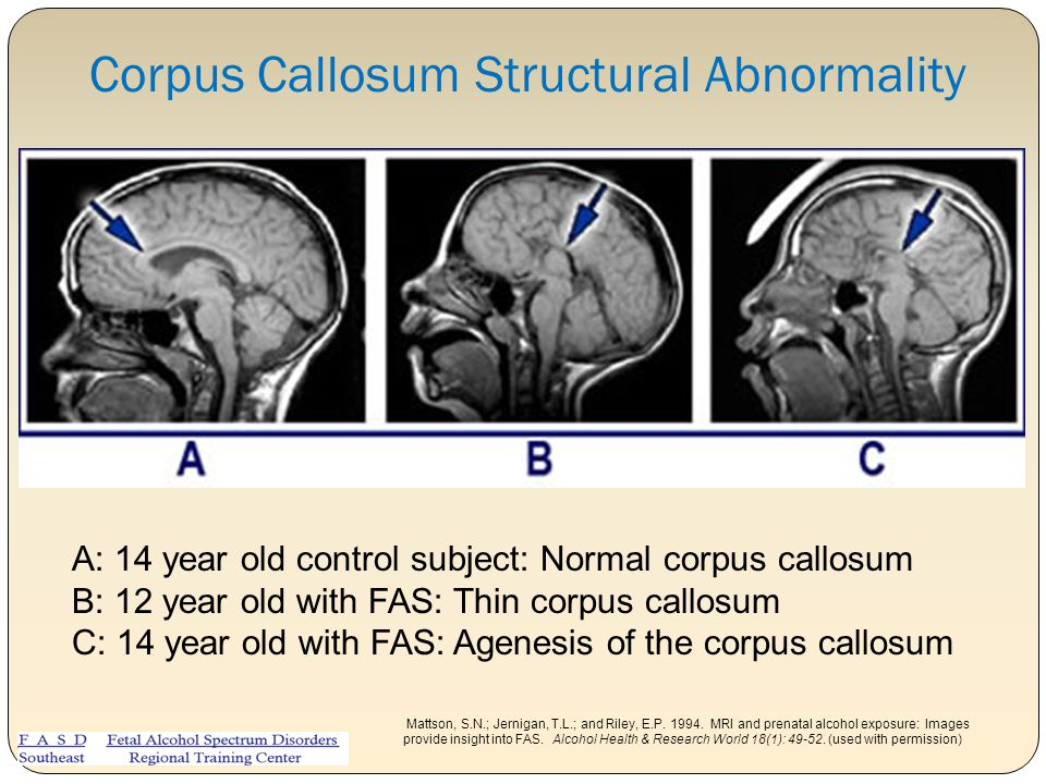 Corpus Callosum Structural Abnormality