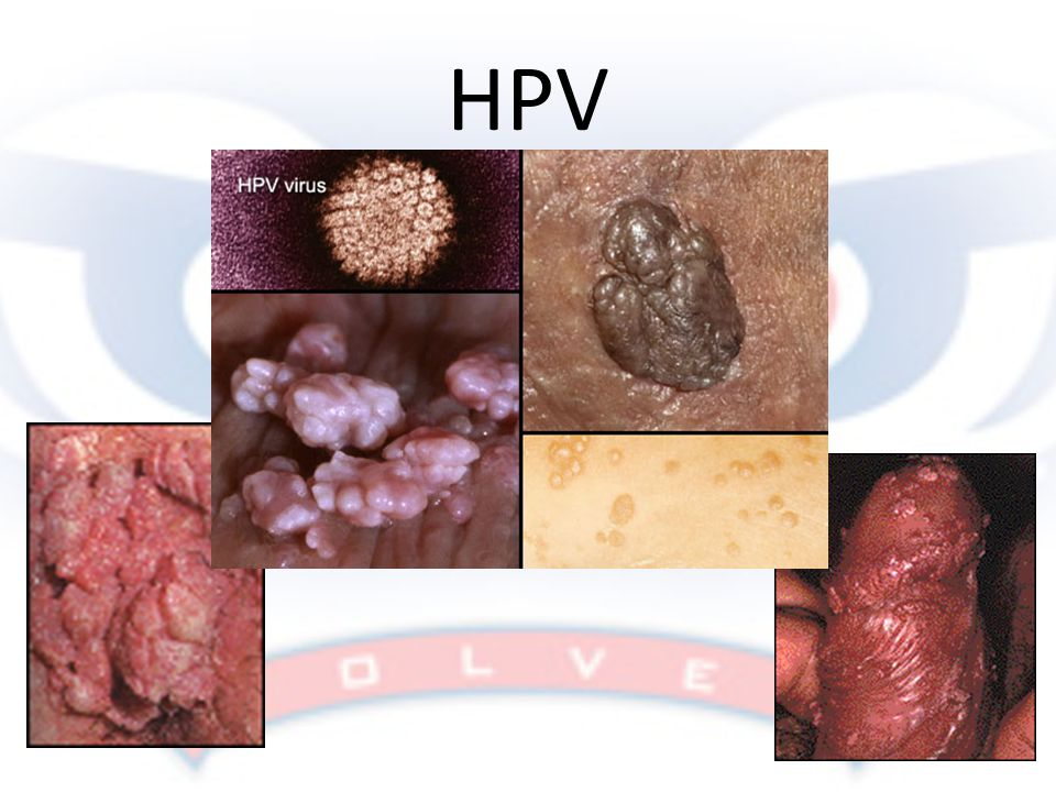 HPV Don't keep the slide up long but make sure there is enough time to get the idea of what the symptoms might look like!