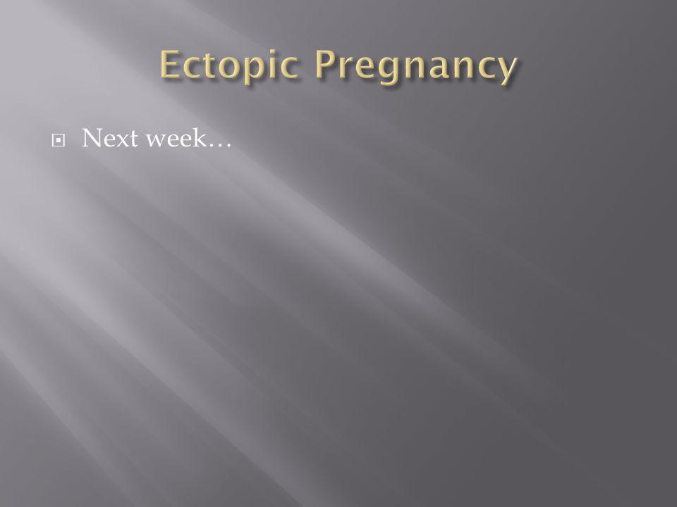 Ectopic Pregnancy Next week…