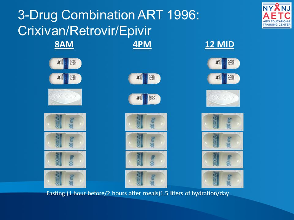 3-Drug Combination ART 1996: Crixivan/Retrovir/Epivir