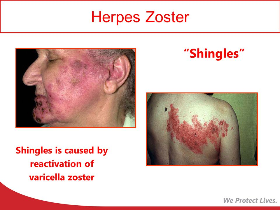 Shingles is caused by reactivation of varicella zoster
