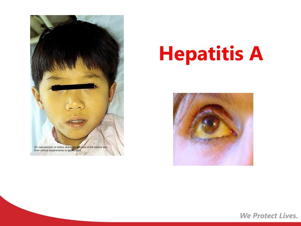 Hepatitis A Now let's look at hepatitis A vaccine .