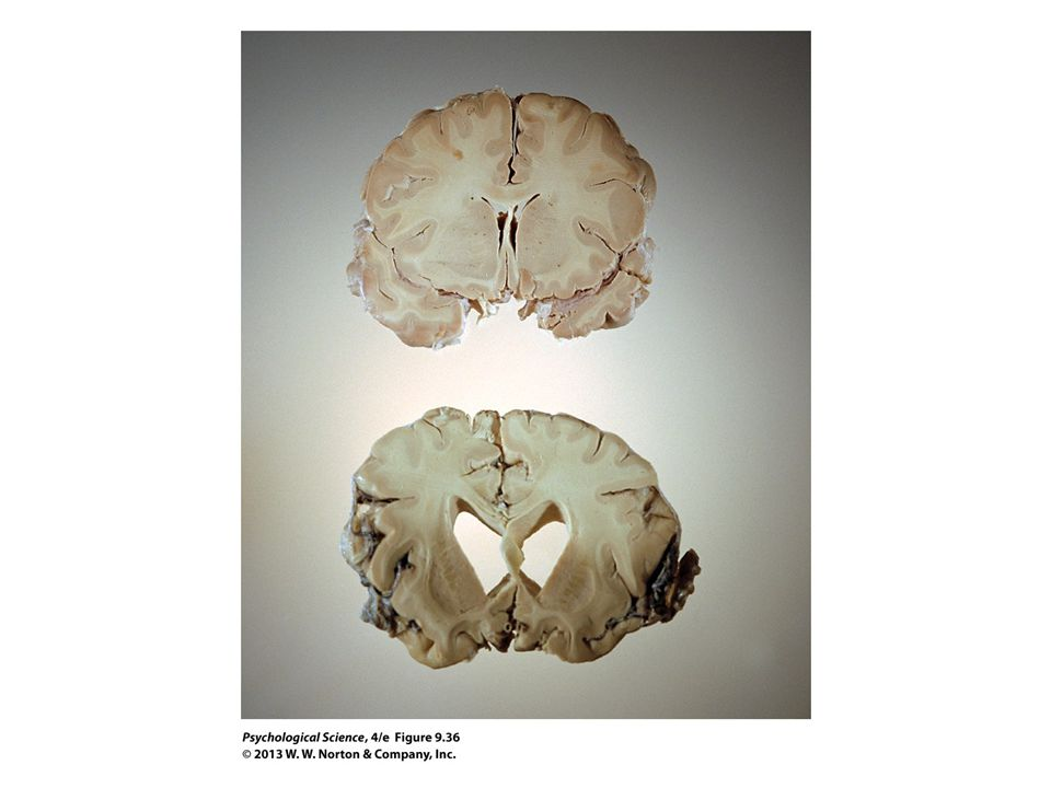 FIGURE 9.36 Damage from Alzheimer's Disease