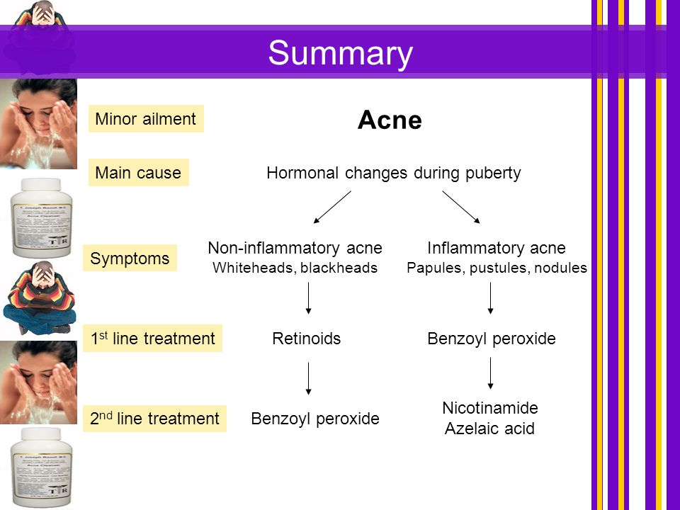 Summary Acne Minor ailment Main cause Hormonal changes during puberty