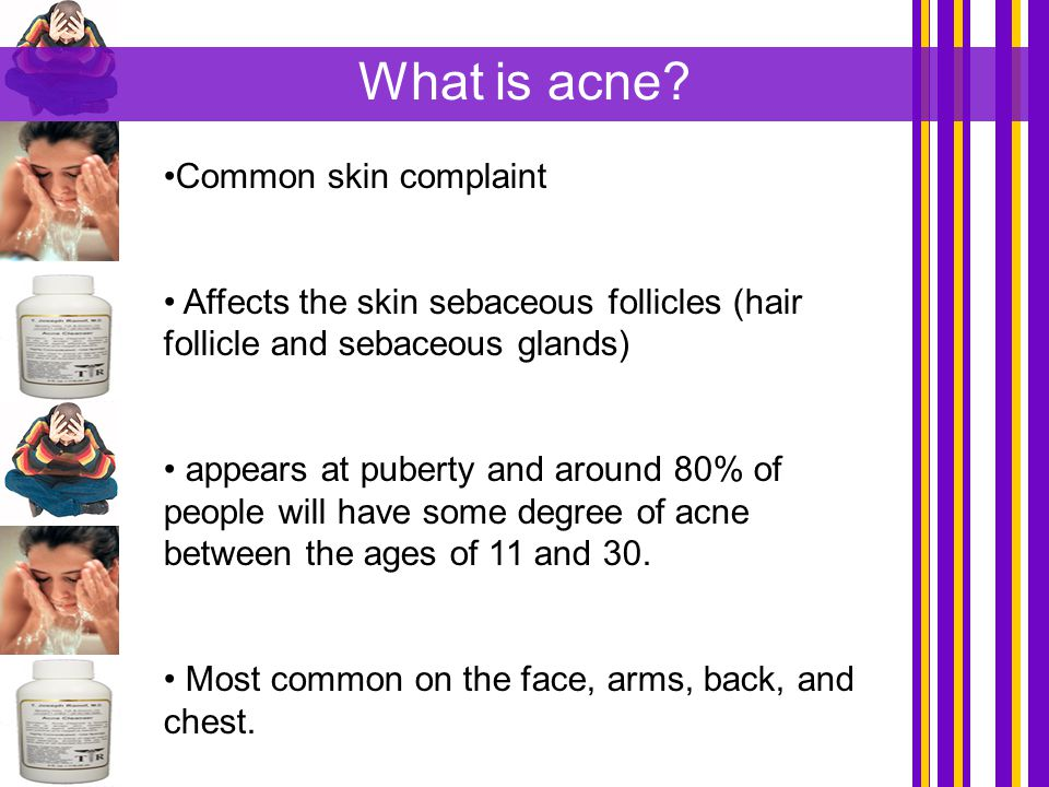 What is acne Common skin complaint