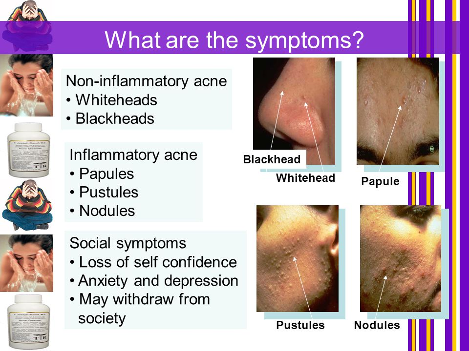 What are the symptoms Non-inflammatory acne Whiteheads Blackheads