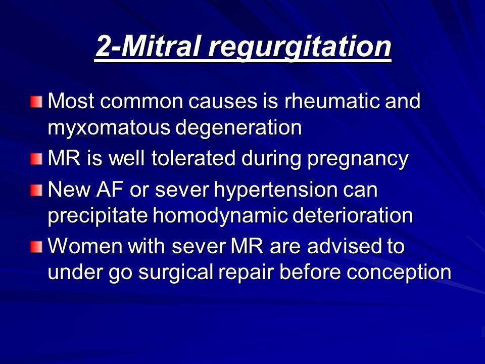 2-Mitral regurgitation