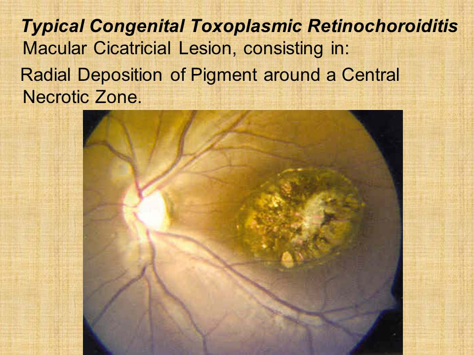 Typical Congenital Toxoplasmic Retinochoroiditis Macular Cicatricial Lesion, consisting in: