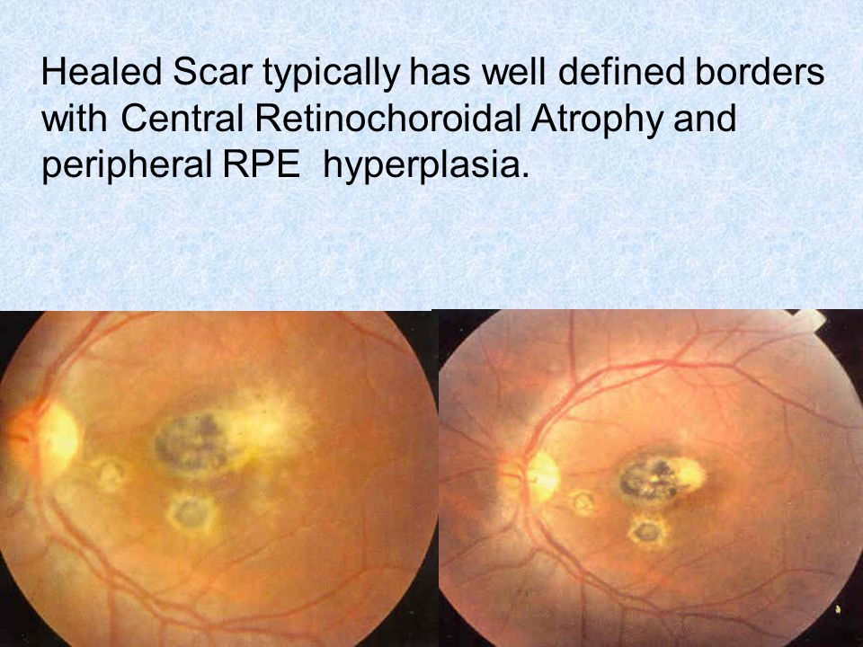Healed Scar typically has well defined borders with Central Retinochoroidal Atrophy and peripheral RPE hyperplasia.