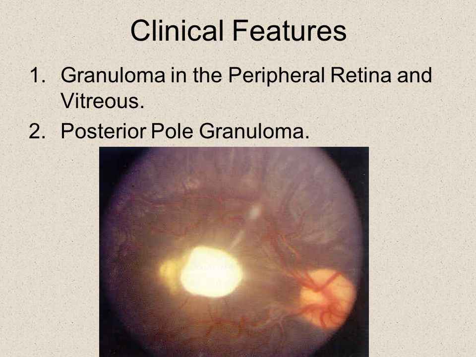 Clinical Features Granuloma in the Peripheral Retina and Vitreous.