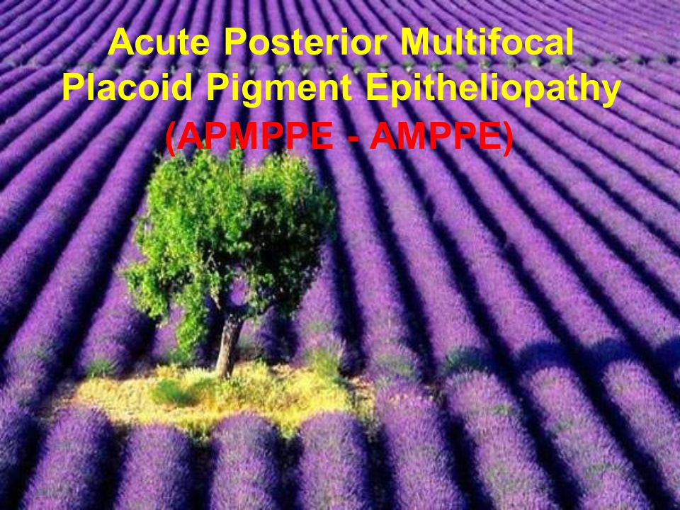 Acute Posterior Multifocal Placoid Pigment Epitheliopathy (APMPPE - AMPPE)